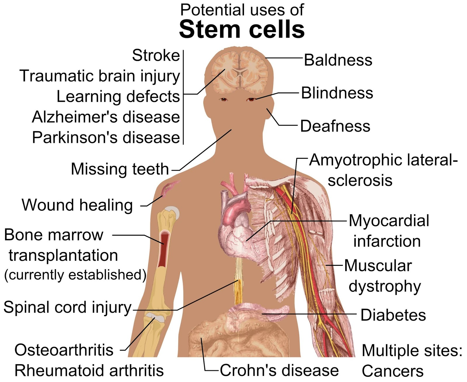 Why Stem Cell Therapy for Cerebral Palsy in India - The Edge Search