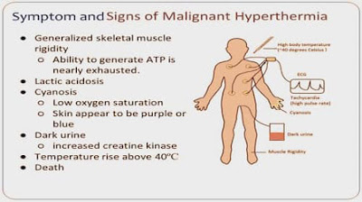 Symptoms and Signs of Malignant Hyperthermia poster
