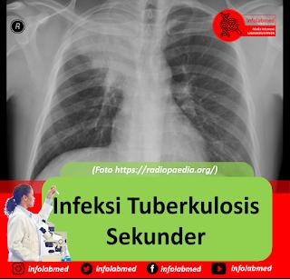 Infeksi Tuberkulosis Sekunder