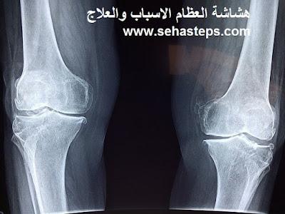 هشاشة العظام اسبابه وعلاجه