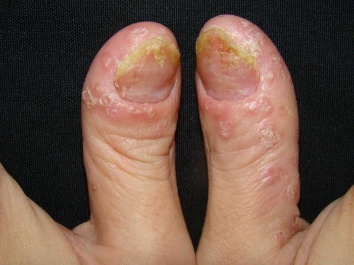 膿疱型乾癬(Pustular type)