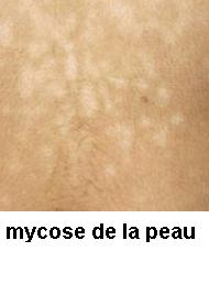 Traitements naturels efficaces au mycose
