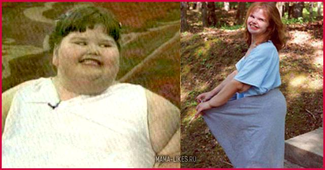 Как сейчас выглядит самая толстая девочка в мире после похудения?