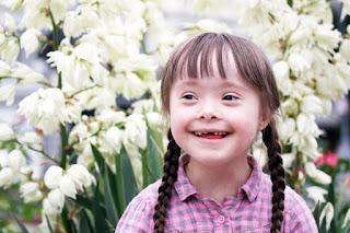 Anak yang mengalami sindrom Down