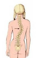 Tulang belakang yaitu salah satu organ penting di tubuh kita Kelainan Tulang Belakang, Penyebab, Gejala, dan Pengobatannya