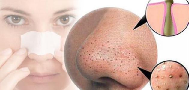 إزالة البذور السوداء من الوجه  بأسهل طريقة