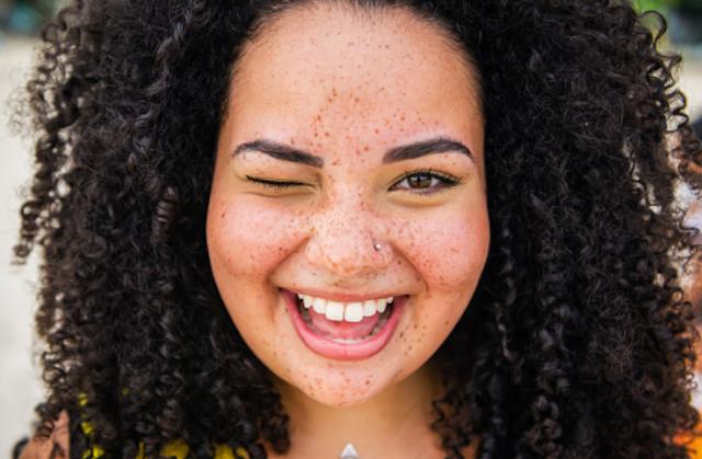 Penyakit Flek Hitam atau Ephelis Pada Tubuh Manusia Pengertian Flek Hitam Flek hitam atau ephelis adalah istilah untuk kumpulan pigmen alami, atau melanin, yang berisi melanosome. Flek hitam dapat terlihat sebagi bentik-bintik pada kulit wajah, walau dapat juga muncul pada bagian tubuh lain, seperti lengan dan bahu. Bintik-bintik ini akan cenderung mudah dilihat dan mudah muncul pada orang dengan kulit cerah. Flek hitam merupakan kondisi yang umum terjadi dan biasanya tidak membahayakan diri penderitanya.  Penyebab Flek Hitam Flek hitam muncul karena meningkatnya produksi melanosome dalam melanin, terutama setelah terpapar oleh sinar matahari. Melanin adalah pigmen yang menentukan warna pada kulit, mata, rambut, dan bagian tertentu dalam telinga manusia. Inilah sebabnya bagian kulit yang memiliki banyak melanosome akan berwarna lebih gelap dibandingkan kulit sekitarnya, sehingga tampak seperti bintik-bintik.  Flek hitam dapat bertambah gelap setelah terpapar sinar matahari, sehinga penggunaan tabir surya sangat disarankan untuk orang dengan kecenderungan ini. Etnis yang hidup di daerah tertentu berisiko memiliki lebih banyak melanin dibandingkan ernis lainnya, sehingga faktor geografis juga menjadi penyebab timbulnya flek hitam.  Orang-orang yang hidup di sekitar garis khatulistiwa cenderung memiliki lebih banyak melanin sebagai respons tubuhnya terhadap sinar matahari. Proses ini menjadikan kulit mereka lebih umum berwarna cokelat gelap. Hal ini dipengaruhi oleh karakteristik melanin yang dapat menyerap sinar matahari, sekaligus menghalau radiasi UV.  Flek hitam juga dapat terjadi karena bawaan genetik. Orang-orang dengan kulit cerah dan memiliki rambut pirang atau merah adalah yang sering mengalami kondisi ini. Flek hitam juga bisa muncul pada orang-orang tua. Bintik-bintik ini dikenal dengan nama liver spot atau sun spot.  Gejala Flek Hitam Flek hitam pada kulit akan terlihat seperti bercak atau titik noda berwarna cokelat terang yang merata. Bercak atau titik no