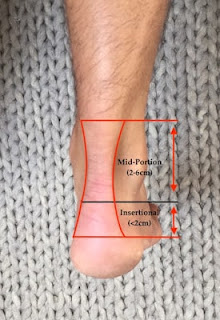 Achilles Tendinopathy Series | Part 1: Defining & Identifying