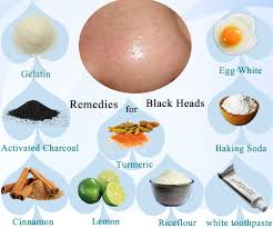 Natural Homemade Remedies For Blackheads