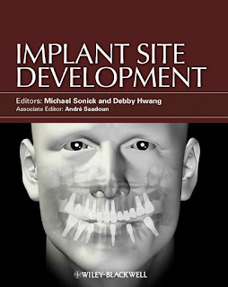 Implant Site Development by Sonick & Hwang