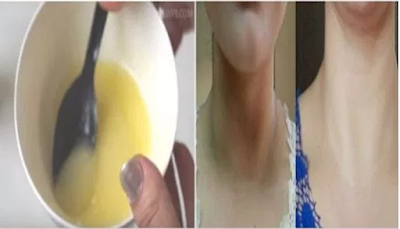 how-to-remove-dark-spots-from-face-and-neck