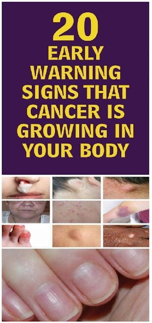 Recognize The Early Symptoms And Save Your Own Life: 20 Signs That A Malignant Disease May Have Emerged In Your Body!