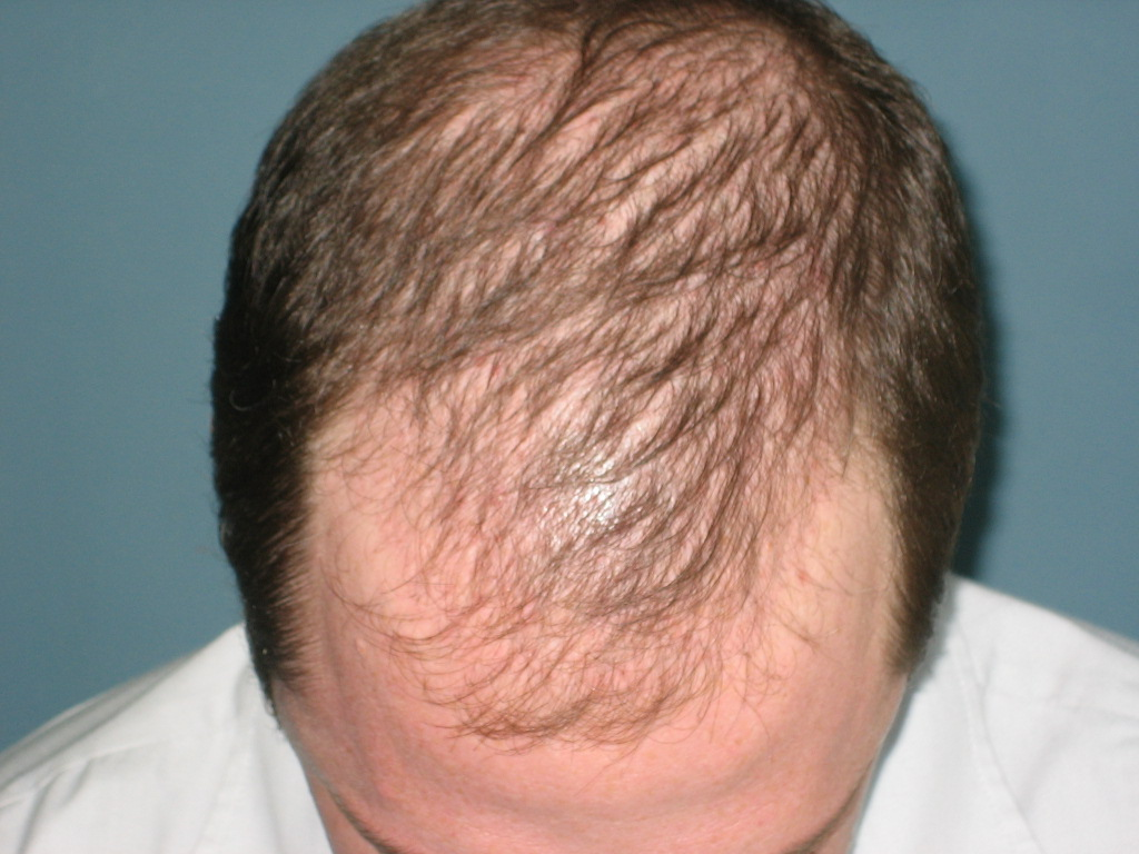 Thyroid Hair Loss Pattern Unique Decorating