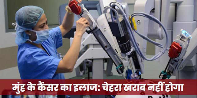 मुंह के कैंसर का इलाज: ट्रांस-ओरल रोबोटिक सर्जरी, चेहरा खराब नहीं होगा   mouth cancer treatment without surgery