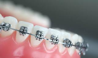 تقويم الاسنان في الرياض