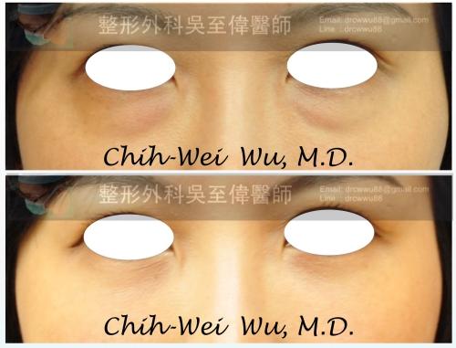 眼袋-%25E6%25BB%2591%25E5%258B%2595035