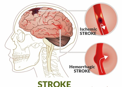 stroke causes treatment