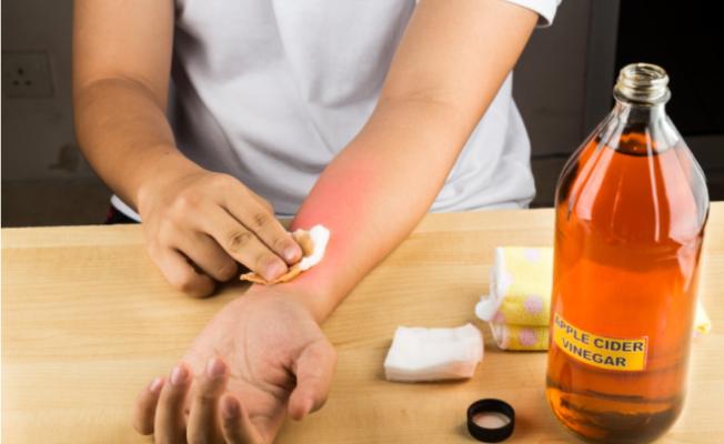 10 علاجات منزلية لعلاج الجروح الحديثة في كل انحاء الجسم
