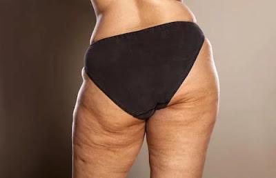 éliminer la cellulite avec un régime alimentaire