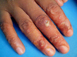 Herpes Kering di Jari Tangan dan Kelamin Pria
