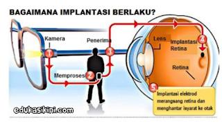 Mata Bionik Penglihatan Untuk Orang Buta