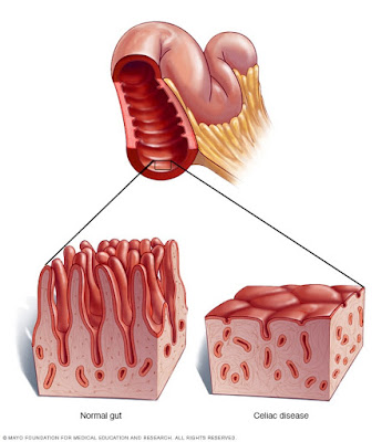 Celiac disease causes