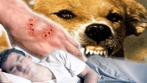 التقرير الطبي لطالب الثانوية المتهم بعقر أفراد أسرته بعد «عضة كلب»
