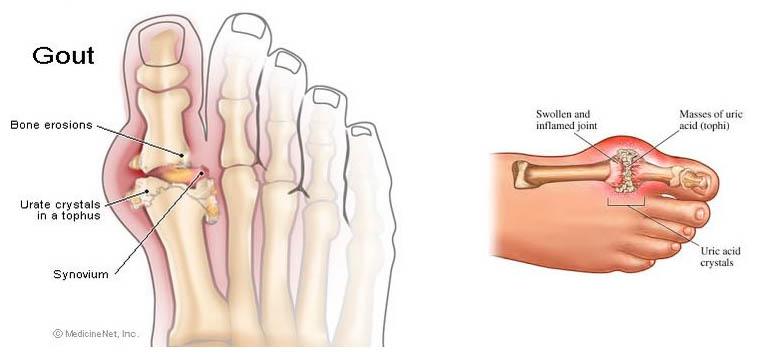 Gout Hilang Dalam Masa 3 hari ?