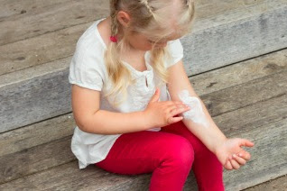 Eczema: How to Help Your Child Avoid the Itch