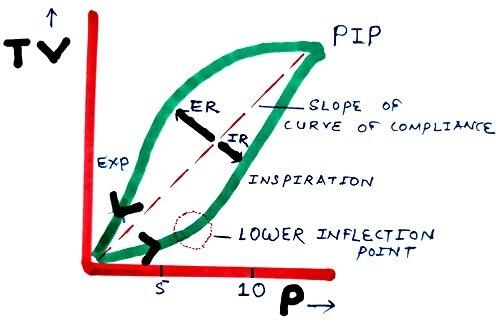 Normal Pressure-volume loop