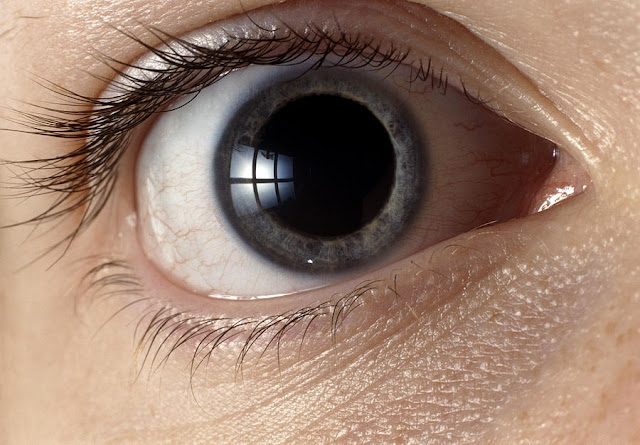 dilated pupil due to mydriatic drops