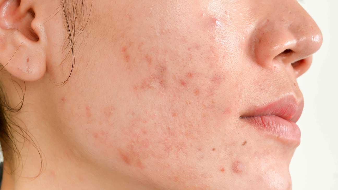acne scars, pimple scars