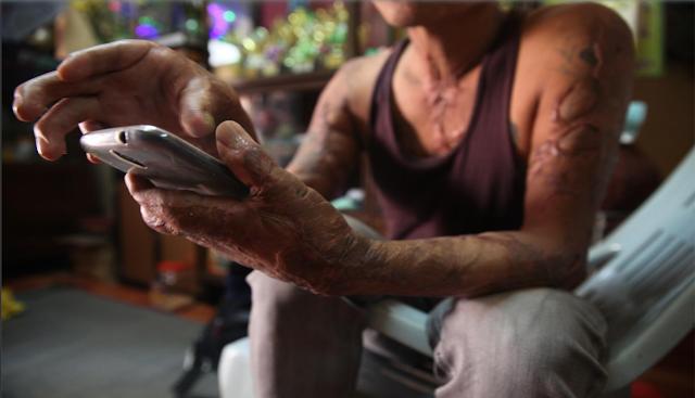 ဝင္းနႏၵာ (Myanmar Now) ● မီးဒဏ္သင့္ အညာသားမီးသတ္သမား