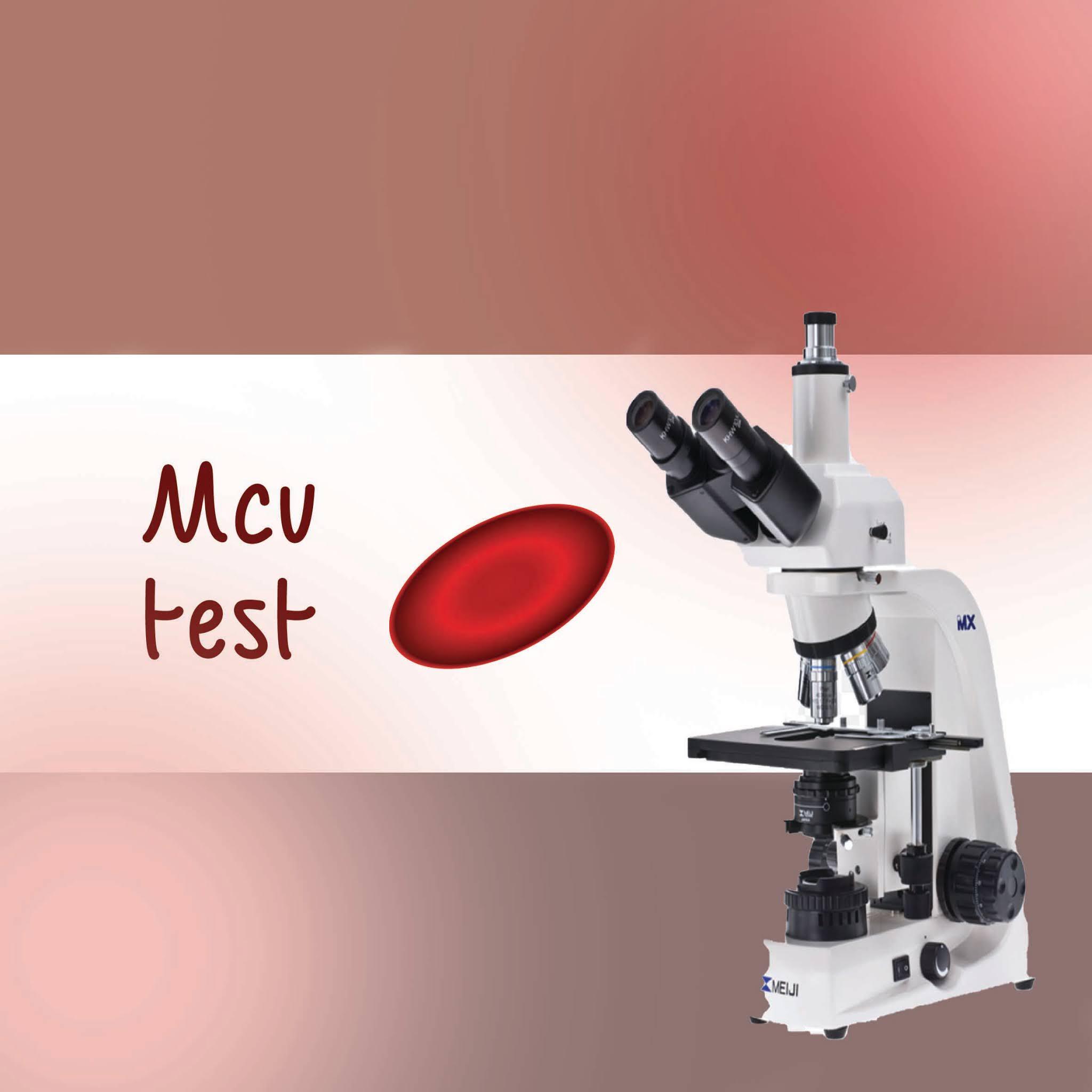 إختبار Mcv