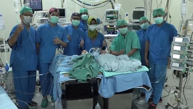 Bayi Kembar Siam Berhasil Dipisahkan Tim Dokter RSUD Dr. Moewardi