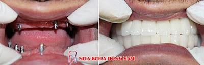có nên cắm ghép răng implant không -12