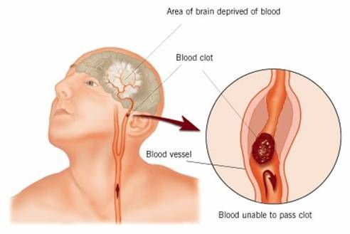 accidente cerebrovascular ringan bisa sembuh diabetes total
