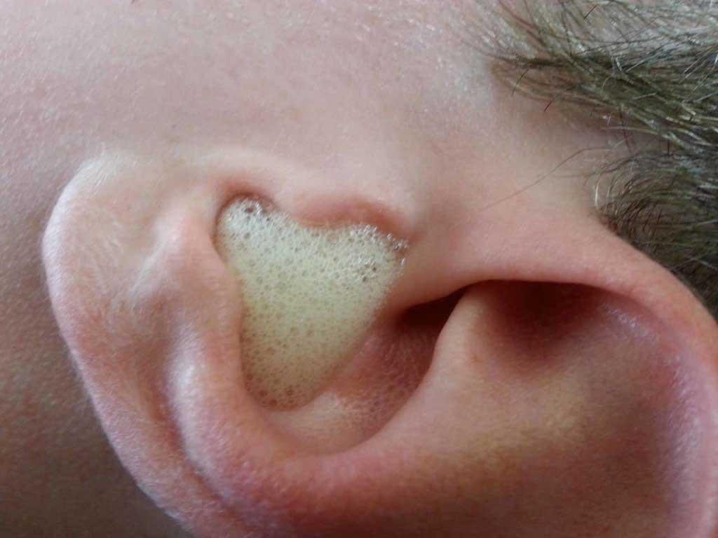 nettoyer vos oreilles en toute sécurité à la maison