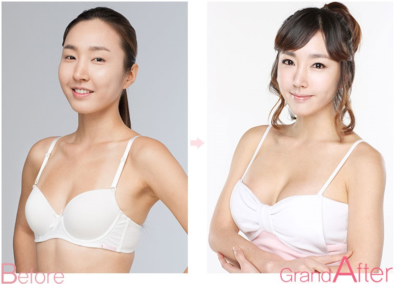 Breast Augmentation Asian 108