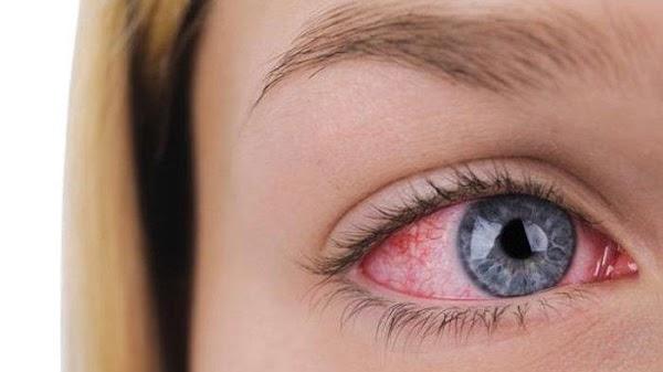 Kenali Penyakit Mata Menular dan Tidak Menular