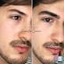 [News] Em alta! Micropigmentação labial e de preenchimento de falhas na sobrancelha conquistam os homens