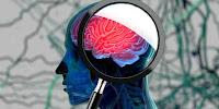 8 Gejala Ini Jadi Pertanda Anda akan Terkena Alzheimer di Masa Depan