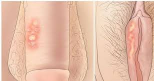 Obat Alami Sipilis Di Apotik Paling Ampuh Lecet%2Bdi%2Bkelamin