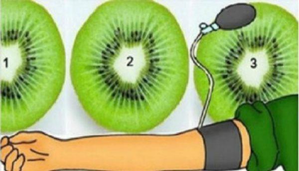 Terbukti !!! Turunkan Tekanan Darah Tinggi Secara Cepat Hanya Dengan Menggunakan 3 Potong Buah Kiwi...