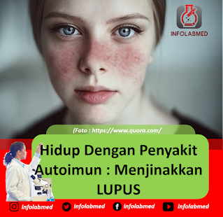 Hidup Dengan Penyakit Autoimun Menjinakkan LUPUS