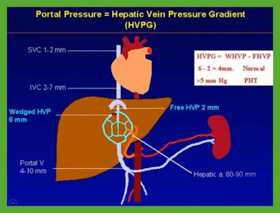 Portal_Pressure