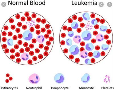 Askep Leukemia Nanda Nic Noc Terbaru