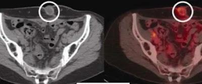 ovarian cyst ichhori