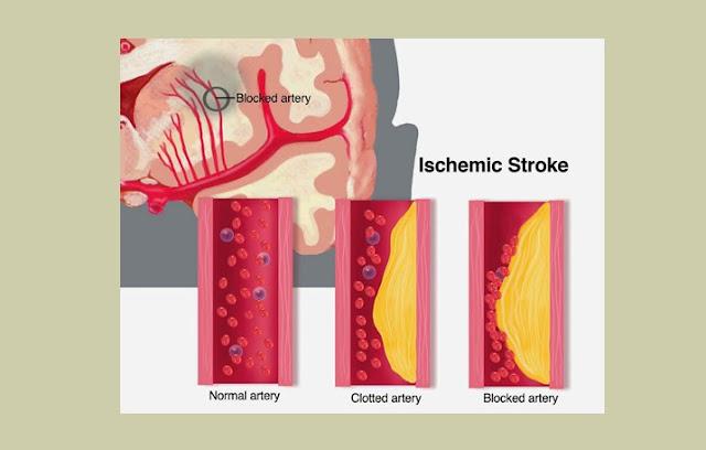 Aterosklerosis, Stroke Iskemik