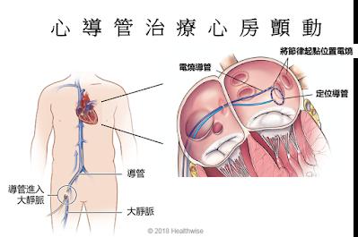 將電燒導管置入心房,電燒異常節律起點,以治療心房顫動(